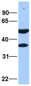 Western blot - Anti-DNAJB6 antibody (ab75196)
