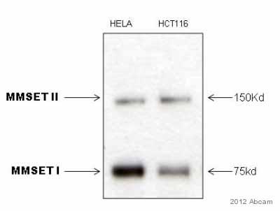 Western blot - Anti-WHSC1/NSD2 antibody [29D1] - ChIP Grade (ab75359)