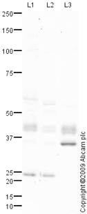Western blot - Anti-HFE antibody (ab75401)