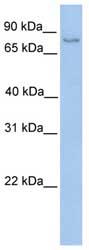 Western blot - Anti-NSUN2 antibody (ab75493)