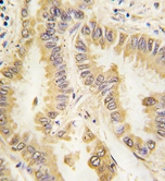 Immunohistochemistry (Formalin/PFA-fixed paraffin-embedded sections) - Anti-SOD2/MnSOD antibody [37CT127.5.11.6] (ab75612)