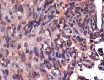 Immunohistochemistry (Formalin/PFA-fixed paraffin-embedded sections) - Anti-CD34 antibody, prediluted (ab75665)