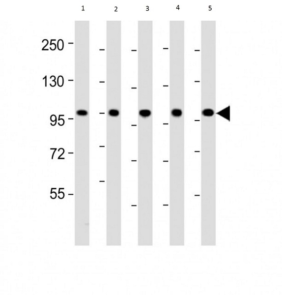 Western blot - Anti-GPCR GPR49 antibody (ab75732)