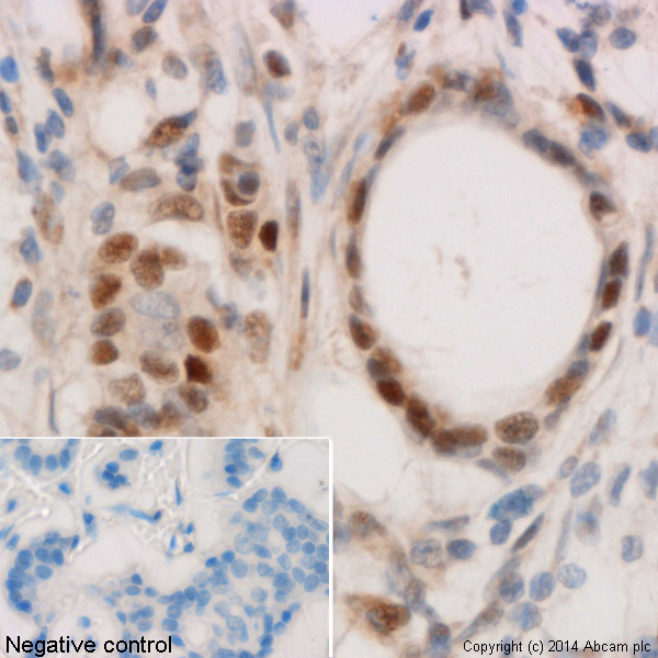 Immunohistochemistry (Formalin/PFA-fixed paraffin-embedded sections) - Anti-p53 (acetyl K382) antibody [EPR358(2)] (ab75754)