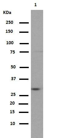 Western blot - Anti-PIM1 [EP2645Y] antibody (ab75776)