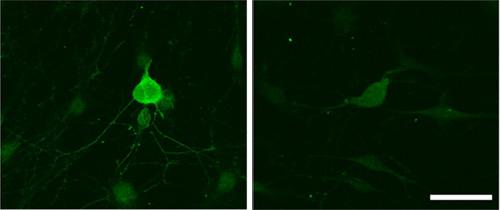 Immunocytochemistry/ Immunofluorescence - Anti-GABA B Receptor 2 antibody [EP2411Y] (ab75838)