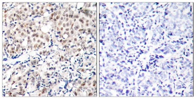 Immunohistochemistry (Formalin/PFA-fixed paraffin-embedded sections) - Anti-p27 KIP 1 (phospho T187) antibody (ab75908)