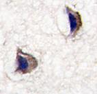 Immunohistochemistry (Formalin/PFA-fixed paraffin-embedded sections) - Anti-Nptx1 antibody (ab75917)