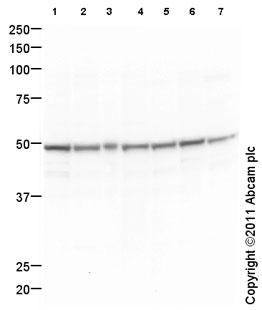 Western blot - Anti-SSB antibody [mAbcam75927] (ab75927)