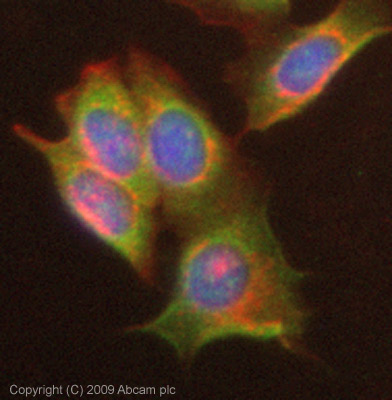 Immunocytochemistry/ Immunofluorescence - Anti-Cytochrome b245 Light Chain antibody (ab75941)