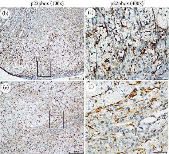 Immunohistochemistry (Formalin/PFA-fixed paraffin-embedded sections) - Anti-Cytochrome b245 Light Chain antibody (ab75941)