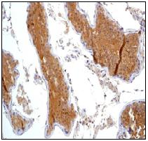 Immunohistochemistry (Formalin/PFA-fixed paraffin-embedded sections) - Anti-PKA 2 beta (regulatory subunit) antibody [EP2649Y] (ab75993)