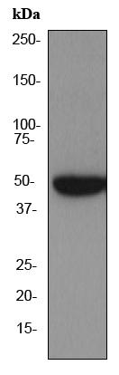 Western blot - Anti-PKA 2 beta (regulatory subunit) antibody [EP2649Y] (ab75993)