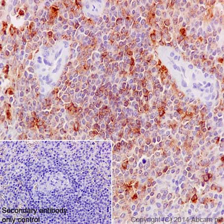 Immunohistochemistry (Formalin/PFA-fixed paraffin-embedded sections) - Anti-MMP9 antibody [EP1254] (ab76003)