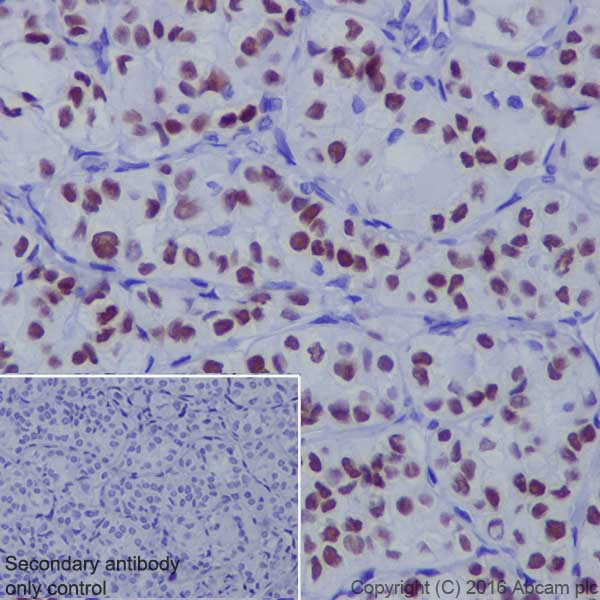 Immunohistochemistry (Formalin/PFA-fixed paraffin-embedded sections) - Anti-TTF1 antibody [EP1584Y] (ab76013)