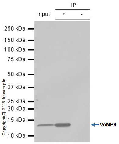 Immunoprecipitation - Anti-VAMP8 antibody [EP2629Y] (ab76021)