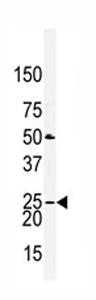 Western blot - Anti-Claudin 2 antibody - Aminoterminal end (ab76032)