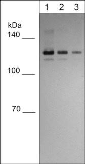 Western blot - Anti-E Cadherin antibody [M168] (ab76055)