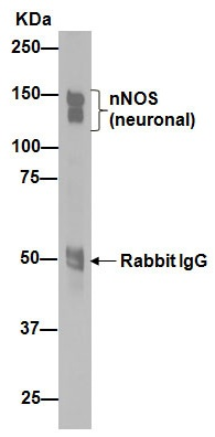 Immunoprecipitation - Anti-nNOS (neuronal) antibody [EP1855Y] (ab76067)