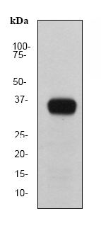 Western blot - Prostate Specific Antigen antibody [EP1588Y] (ab76113)