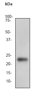 Western blot - Anti-Noggin antibody (ab76116)