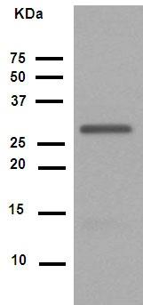Western blot - Anti-Cdk2 (phospho Y15) antibody [EPR2233Y] (ab76146)