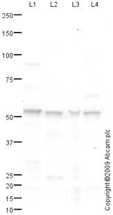 Western blot - Anti-Cytochrome p450 2J2 antibody (ab76176)