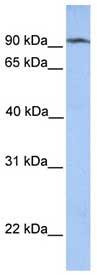 Western blot - Anti-CLPB antibody (ab76179)