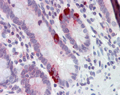 Immunohistochemistry (Formalin/PFA-fixed paraffin-embedded sections) - Anti-SLC39A5 antibody (ab76191)