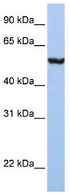 Western blot - Anti-SLC39A5 antibody (ab76191)