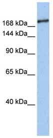 Western blot - Anti-Sin3b antibody (ab76231)