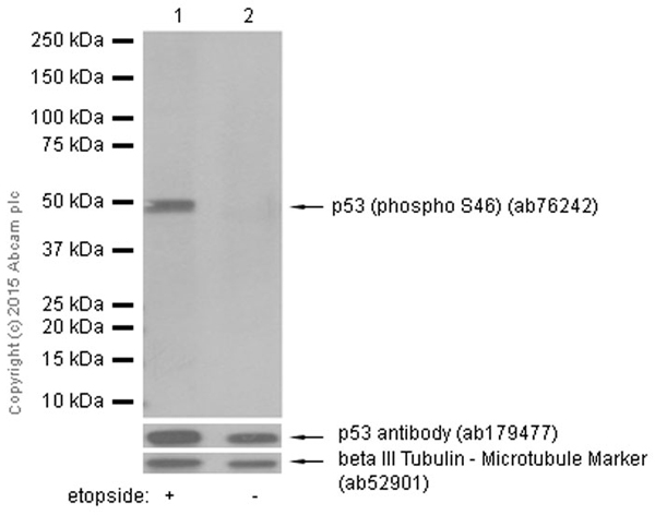Western blot - Anti-p53 (phospho S46) antibody [EP42Y] (ab76242)