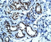 Immunohistochemistry (Formalin/PFA-fixed paraffin-embedded sections) - CTNNBL1 antibody [EP2669Y] (ab76243)