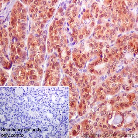 Immunohistochemistry (Formalin/PFA-fixed paraffin-embedded sections) - Anti-Galectin 3 antibody [EP2775Y] (ab76245)