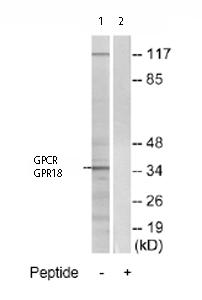 Western blot - Anti-GPCR GPR18 antibody (ab76258)