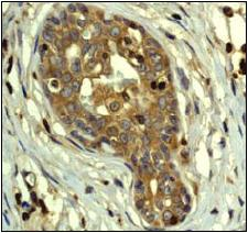 Immunohistochemistry (Formalin/PFA-fixed paraffin-embedded sections) - PAK2 antibody [EP796Y] (ab76293)
