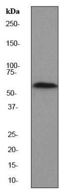 Western blot - PAK2 antibody [EP796Y] (ab76293)