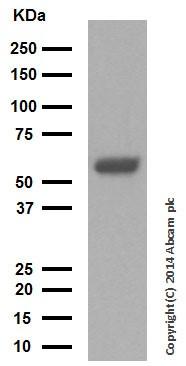 Western blot - Anti-Cytokeratin 10 antibody [EP1607IHCY] (ab76318)