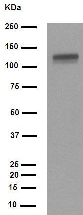 Western blot - Anti-E Cadherin (phospho S838 + S840) antibody [EP913(2)Y] (ab76319)