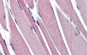 Immunohistochemistry (Formalin/PFA-fixed paraffin-embedded sections) - Anti-Hexokinase II antibody (ab76358)