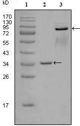 Western blot - Anti-Eph receptor A7 antibody [6C8G7] (ab76372)