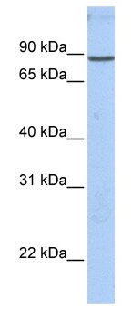 Western blot - Anti-Gelsolin antibody (ab76418)