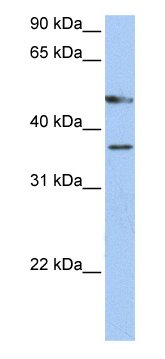 Western blot - Anti-FOXD4 antibody (ab76421)