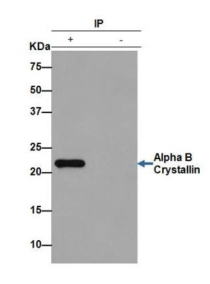 Immunoprecipitation - Anti-Alpha B Crystallin antibody [EPR2752] (ab76467)