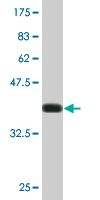 Western blot - Anti-cAMP Protein Kinase Catalytic subunit antibody (ab76513)