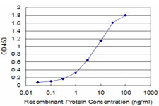 ELISA - Anti-cAMP Protein Kinase Catalytic subunit antibody (ab76513)