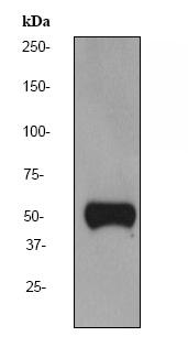 Western blot - Anti-Vitamin D Binding protein antibody [EPR2922Y] (ab76537)