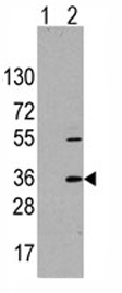 Western blot - Anti-TRAP alpha antibody - Aminoterminal end (ab76595)