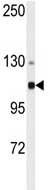 Western blot - Anti-alpha Actinin 4 antibody (ab76665)