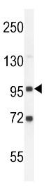 Western blot - Anti-GPLD1 antibody (ab76699)